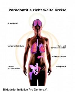 Eine Parodontitis beeinflusst Diabetes und kann sie verschlimmern. Da die Krankheit chronisch ist und nur kontrolliert aber nicht geheilt werden kann, gilt die erhöhte Aufmerksamkeit der Diabetiker für ihre Zahngesundheit ein Leben lang. . .Neueste Untersuchungen aus Finnland, USA und Deutschland erhärten den Verdacht, dass eine Zahnfleischentzündung (Parodontitis) ein verdoppeltes Herzinfarktrisiko nach sich zieht, das Schlaganfallrisiko verdreifacht und das Risiko einer Frühgeburt sich verachtfacht. . .+++ Die Verwendung dieses Bildes ist nur für redaktionelle Zwecke und ausschließlich in Bezug auf das Thema Zahnmedizin gestattet. Die Bearbeitung des Bildes ist nicht erlaubt, mit Ausnahme der Verkleinerung oder Vergrößerung sowie der technischen Aufbereitung zum Zweck der optimalen Vervielfältigung. Die Weitergabe dieses Bildes an Dritte und insbesondere der honorarpflichtige Vertrieb/die Speicherung in Bilddatenbanken i