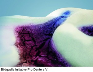 Schon Minuten nach dem Zähneputzen entsteht erneut ein sogenanntes Schmelzoberhäutchen auf der Zahnoberfläche, Fachbegriff Pellikel. An dieses Schmelzoberhäutchen heften sich in der Folge Bakterien an. Über Stunden und Tage wird die Bakterienschicht immer dicker, bis schließlich mit bloßem Auge eine Belagschicht zu erkennen ist. Fachleute sprechen in diesem Stadium von reifer Plaque bzw. von einem Biofilm. Eine Vorstife des Karies.