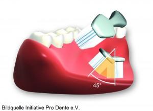 Für eine gelungene Zahnpflege braucht man zwei Dinge: Zeit und das Wissen, wie's richtig geht. Out sind heftiges Querschrubben und seitliches auf und ab bürsten mit zu viel Druck. Dadurch wird der Zahnbelag nicht effektiv entfernt und die Zähne auf Dauer beschädigt. Dagegen eignet sich die sogenannte Rütteltechnik sehr gut zur schonenden Reinigung der Zähne. Dazu die Bürste im 45 Grad Winkel am Zahnfleischrand aufsetzen und leicht rütteln.