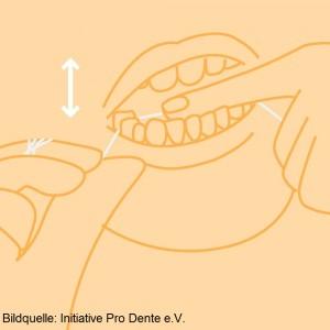 Für enge Zwischenräume bleibt die Zahnseide die beste Reinigungshilfe, die bei korrekter Anwendung und ohne Verletzungen des Zahnfleisches eine optimale Plaqueentfernung erreicht. Gewachste Zahnseide gleitet leichter in die Zwischenräume und über raue Stellen hinweg. Sie wird für Anfänger gerne empfohlen. Ungewachste besitzt eine bessere Reinigungswirkung und hat Vorteile bei der Anwendung von Fluoriden. Inzwischen sind jedoch viele Spezialzahnseiden erhältlich wie etwa mit besonderen Gleiteigenschaften oder breiteren, flauschigen Anteilen bzw. Einfädelhilfen für Brücken.